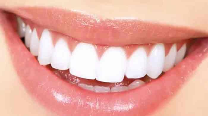 clear braces invisalign cost