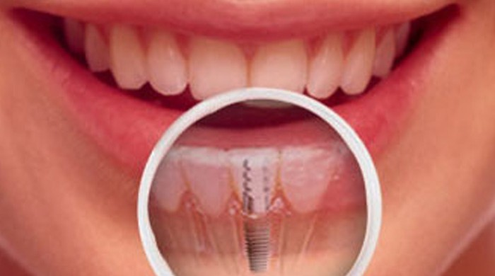 cost for invisalign fort worth tx