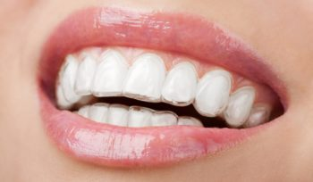 clear braces invisalign cost